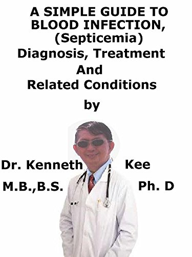 A  Simple  Guide  To  Blood Infection (Septicemia)  Diagnosis, Treatment  And  Related Conditions - Hematology Control