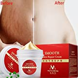 Best Skin Creams - Yiwa Smooth Skin Repair Cream for Stretch Marks Review