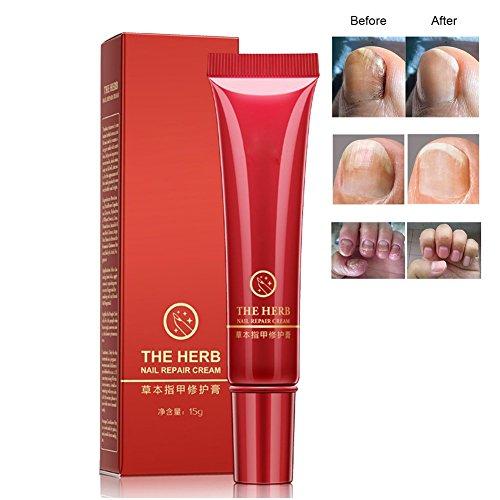 ZDU Foot Nail Repair Cream Protector Skin Care Cream Nail Fungus Treatment Herb Anti Fungal Nail Repair Cream