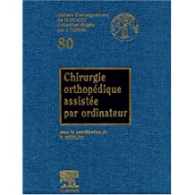 CHIRURGIE ORTHOPÉDIQUE ASSISTÉE PAR ORDINATEUR