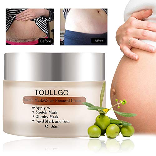 Buy cream to get rid of stretch marks