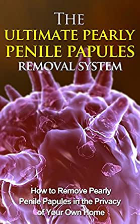 Do papules get why penile you pearly I'm 12,