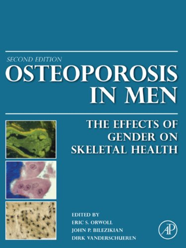 Download Osteoporosis in Men: The Effects of Gender on Skeletal Health Pdf