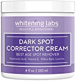 Dark Spot Corrector Best Dark Skin Age Spot Remover for Face, Hands, Body
