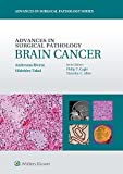 Brain Cancer, Rivera, Andreana and Takei, Hidehiro, 1451190913