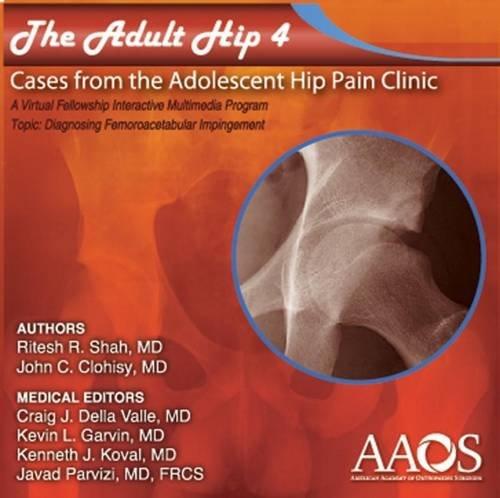 The Adult Hip Case 4 Diagnosing Femoroacetabular Impingement