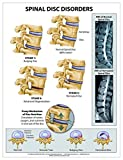Spinal Disc Disorders Wall Chart - Paper, Shop Anatomical and Jones, Nicole M., 1942605021