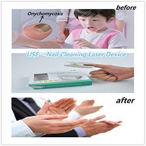 BULLKEYS Nail Cleaning Laser Device,Toenail Fungus Treatment Revolutionary And Safe Fungus Remover Treatment For Toe And Finger Nails To Use At-Home