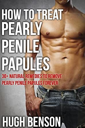 Home Remedies To Remove Penile Papules
