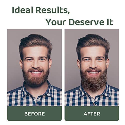 Beard Growth Kit, Beard Growth Oil Serum, Beard Grooming Balm, Stimulate Beard Growth for Men…