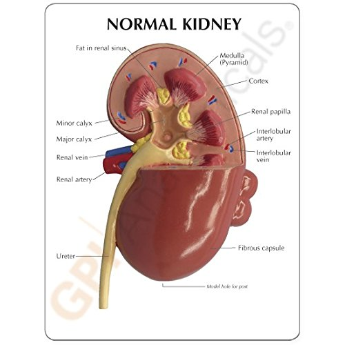 Kidney Anatomical Model Normal And Diseased With Pathologies