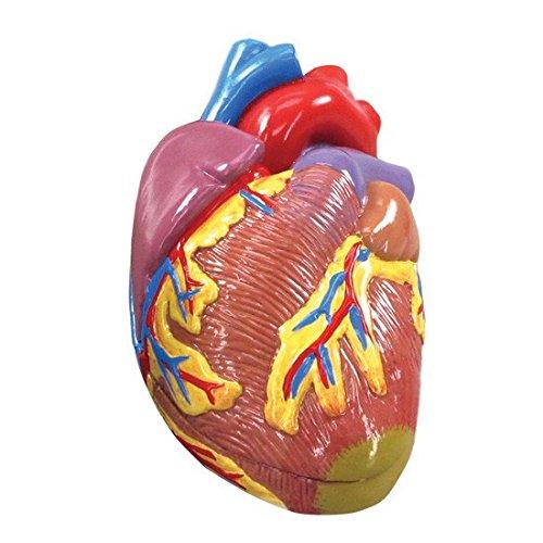 Hypertension Organ Model Set by Anatomical Chart Company (Image #3)