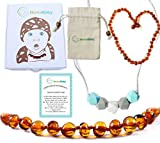 Best Teething Remedies - Baltic Amber Teething Necklace Gift Set For Babies Review