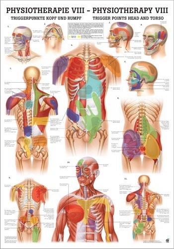 Ruediger Anatomie PHYS VIII LAM Triggerpunkte Kopf und Rumpf Tafel, 50 cm x 70 cm, laminiert