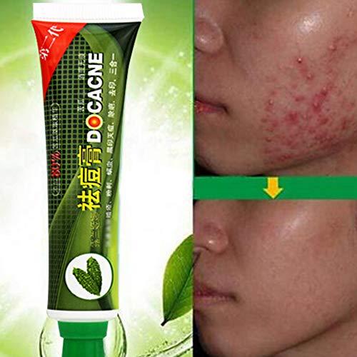 30g Face Skin Balsam Pear Care Acne Cream Oil Control Face C