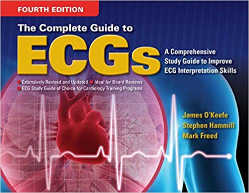 The Complete Guide to ECGs James H. O