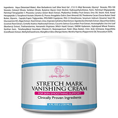Buy cream for stretch mark removal