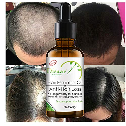 ❤️ Sunbona Clearance Sale Hair Growth Fluid 30ml Moisturizing Nourish Scalp Smooth Dry Repair Treatment Hair Care Oil ()
