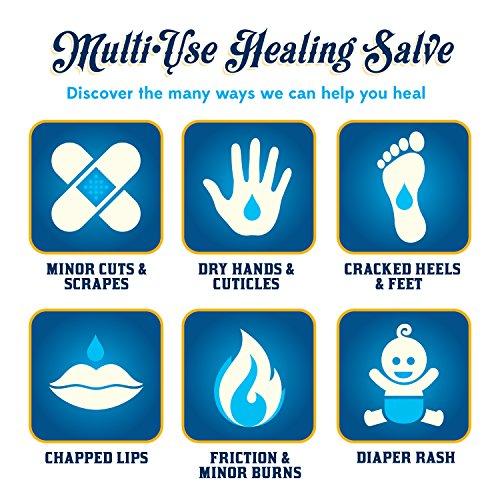Buy salve for dry skin