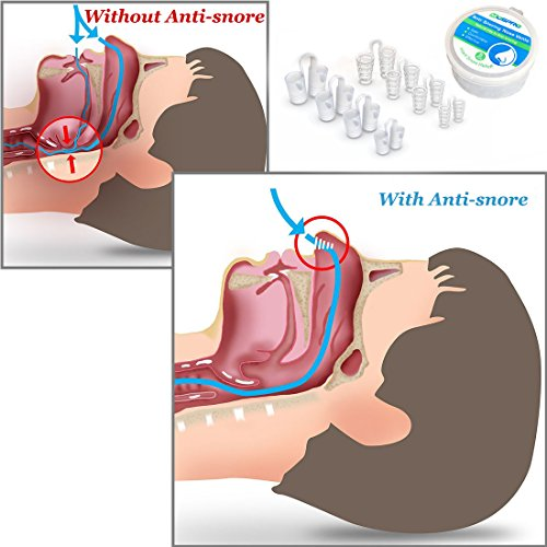 Anti Snoring Sets of 8 Stop Snoring Nose Vents Help Ease Breathing And Snoring Different Size Snore Stopper by HLXY (Image #2)