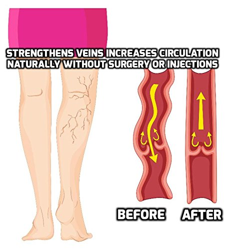 Goodbye Varicose Veins - Natural Varicose Vein Treatment with a