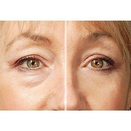Amazon.com: Rox impecable ojos crema de ojos | Ayudar con ...