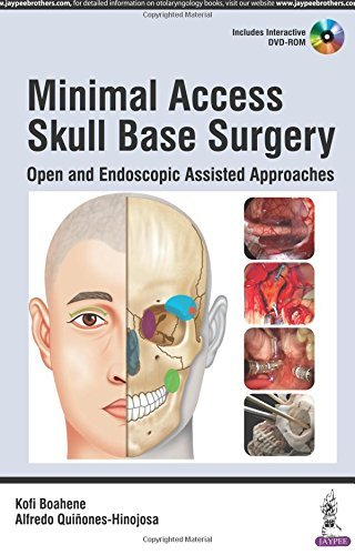 Minimal Access Skull Base Surgery: Open and Endoscopic Assisted Approaches (2016-04-30)