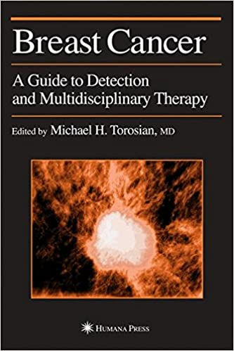 Breast cancer clinical current detection guide multidisciplinary oncology therapy