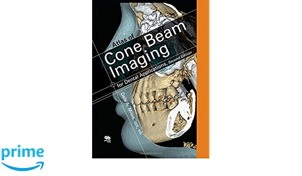Color Atlas of Cone Beam Imaging for Dental Applications: Amazon.es: Dale A. Miles: Libros en idiomas extranjeros