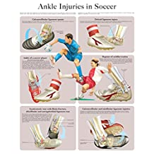 Ankle Injuries in Soccer e-chart: Quick reference guide