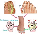 Elastic Gel Toe Separators, Toe Straightener for Bunions, Hammer Toes - Yoga Practice & Running for Toe Straightener, for Women & Men, (1 pairs)