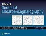 Atlas of Neonatal Electroencephalography