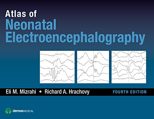 Artifact 4th Edition - Atlas of Neonatal Electroencephalography, Fourth Edition