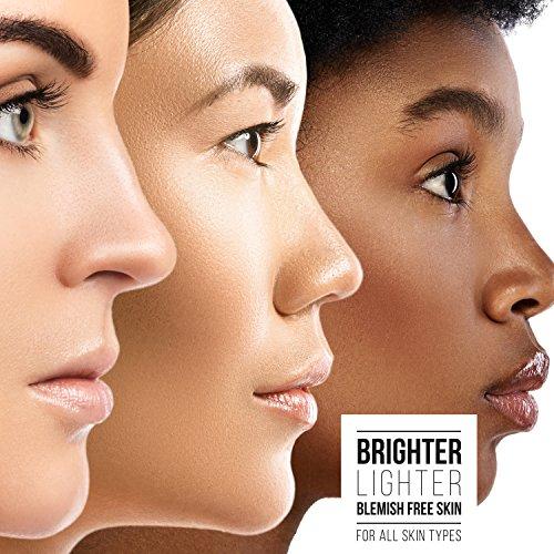 Buy hyperpigmentation best treatment