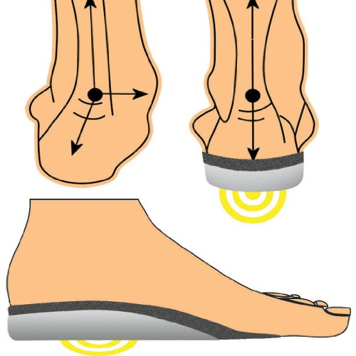 Running insoles shin splints