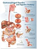 Gastroesophageal Disorders and Digestive Anatomy Chart