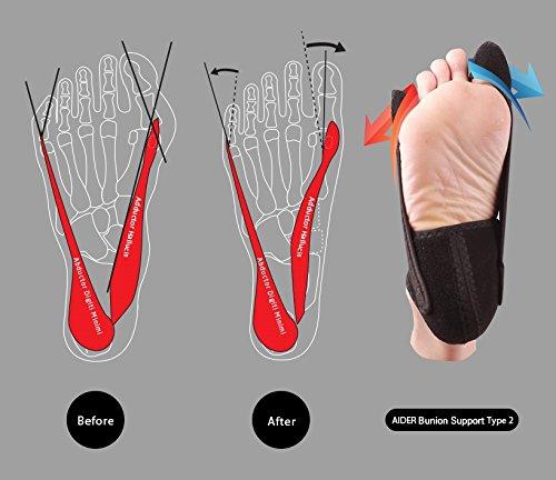 Aider Bunion Support, Comprehensive Bunion Corrector & Bunion Relief ToePal kit-5 Piece Hallux Valgus & Bunion Pads, Toe Spacers, Toe Separators, Bunion Splint, Toe Straightener (Left (black)) by Aider (Image #4)