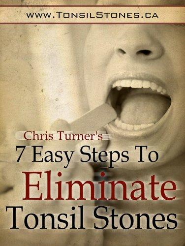 Easy Steps Eliminate Tonsil Stones ebook product image