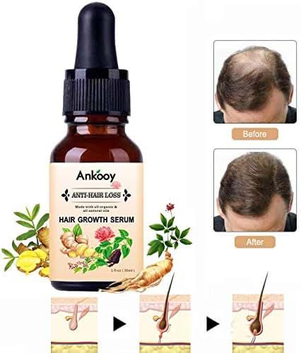 Hair Growth Serum,2019 Hair Growth Oil,Hair Growth,Stops Hair Loss, Hair Thinning Treatment, Hair Growth Treatment,Hair Serum, Thinning,Balding,And Promotes Hair Regrowth For Women and Men