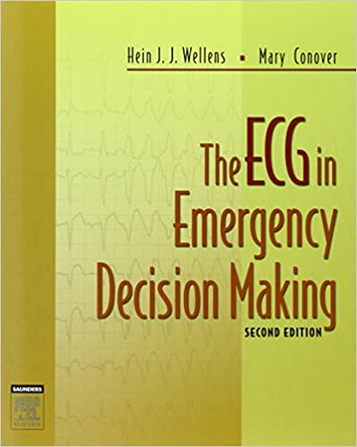 The ECG in Emergency Decision Making, 2e 2nd Edition 51Byd4HRE0L._SX398_BO1,204,203,200_