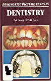 Diagnostic Picture Tests in Dentistry, Philip-John Lamey, 072340982X