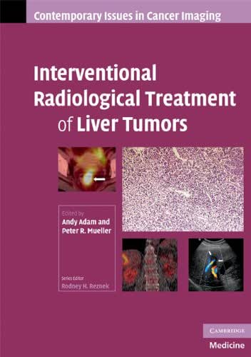 Interventional Radiological Treatment of Liver Tumors (Contemporary Issues in Cancer Imaging)