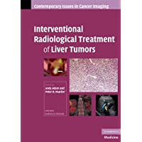 Interventional Radiological Treatment of Liver Tumors (Contemporary Issues in Cancer...
