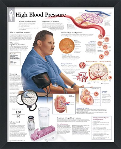 "Set of 3 Framed Medical Posters High Blood Pressure, Effects of Hypertension, Understanding DVT 22""x28"" Wall Diagrams"