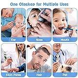 Ear Camera Otoscope USB Digital Endoscope Camera