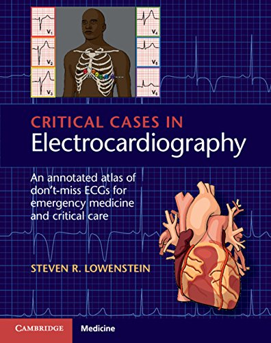 Critical Cases in Electrocardiography: An Annotated Atlas of Don't-Miss ECGs for Emergency and Critical Care (Cases Annotated)