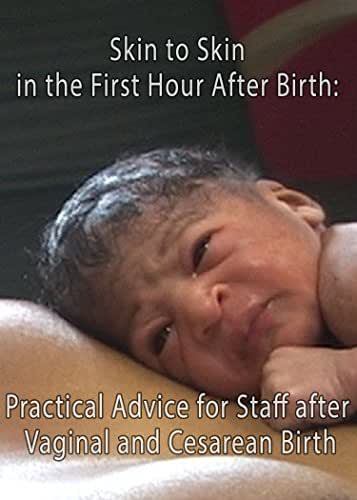 Skin to Skin in the First Hour After Birth: Practical Advice for Staff after Vaginal and Cesarean Birth