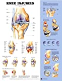 Knee Injuries, Anatomical Chart Company Staff, 1587797577