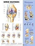 Knee Injuries, Anatomical Chart Company Staff, 1587797577