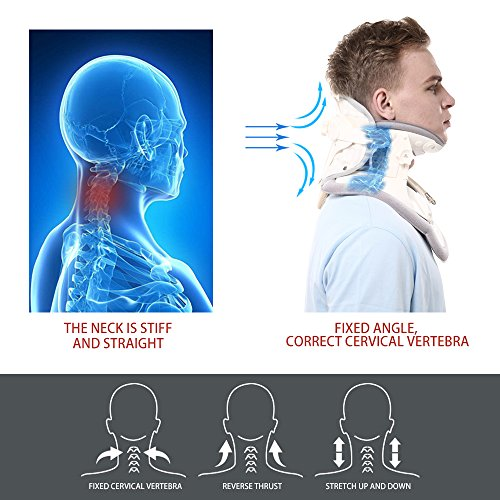 Patented FDA Guaranteed New Medical Neck Cervical Traction Device Portable Home Use, Therapy Unit Provide Relief for Neck and Upper Back Pain, Dizziness and Limb Numbness. by ALPHAY (Image #3)